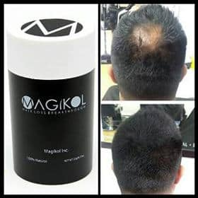 Magikol 100% Vegan Natural Hair Loss Treatment For Men